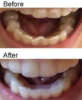 20200719_teeth